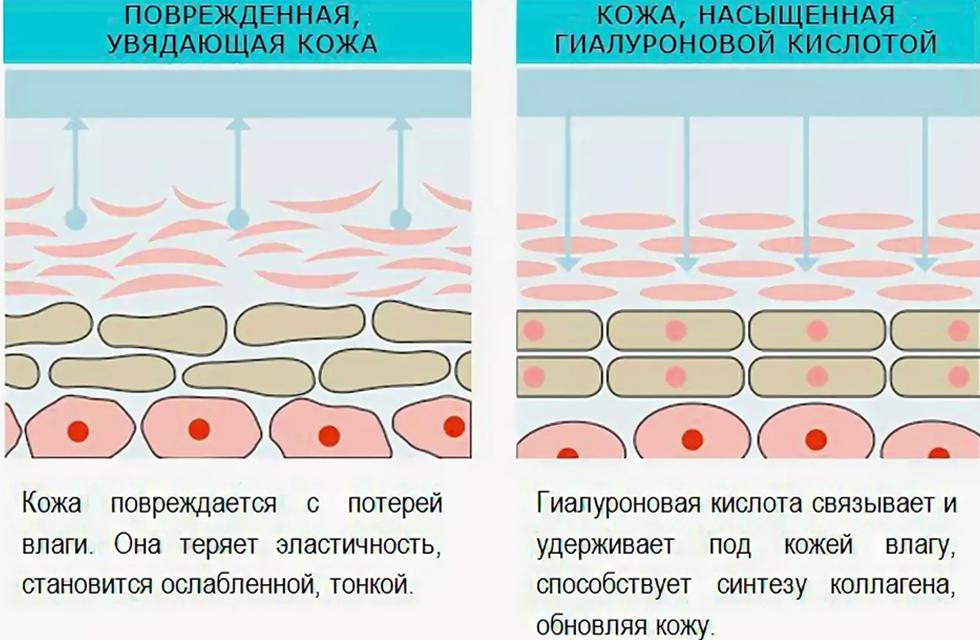 гиалуроновая кислота