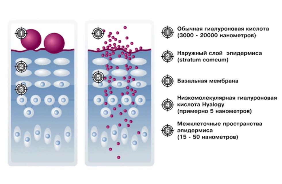 высокомолекулярная гиалуроновая кислота