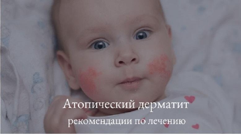 атопический дерматит - рекомендации
